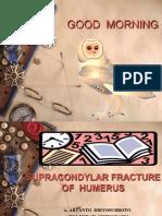 Supracondyler Fraktur of Humerus