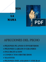 Afecciones de La Mama Extraccion Manual