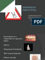 enfermedad_periodontal2p