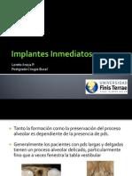 Implantes Inmediatos