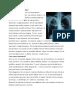 Cum Se Manifesta Tuberculoza