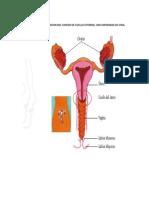 Cancer de Cuello Uterino Arreglado