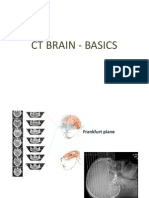 CT Basics