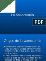 La Vasectomía