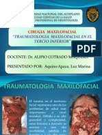 Traumatologia Maxilofacial en El Tercio Inferior