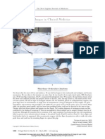 Waterhouse–Friderichsen Syndrome NEJM