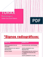 TORAX TIPS.pptx