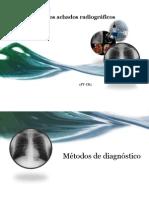 Pneumonia Srecurso FT