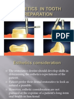 Esthetics in Tooth Preparation