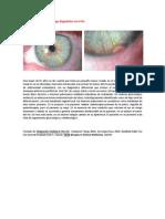 A primera vista 217 (Hallazgo diagnóstico en el iris)