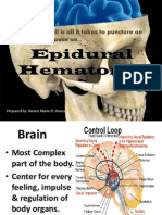 35291789 Epidural Hematoma