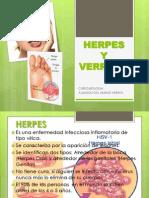 Herpes y Verruga