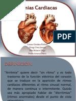 Arritmias Cardiacas2