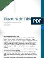 Fractura de Tibia.pptx