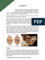 Osteoporosis Listo
