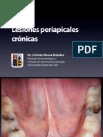 Lesiones Periapicales Cronicas 2013