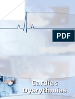 Cardiac Dysrythmias