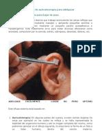 auriculoterapia para descabalgar de pesadumbre sirvet