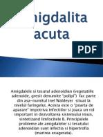 Amigdalita acuta