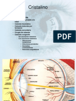 Catara Glaucoma Uveitis