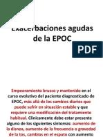 EXACERB.EPOC