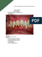 enfermedades dentales1