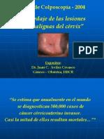 Abordaje+de+Lesiones+Premalignas+Del+Cervix+CONF