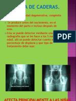 Displasia de caderas.pptx