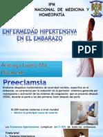 Hipertencion en El Embarazo