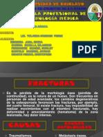 Fracturas. diapos
