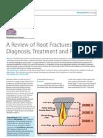 109963226 Root Fractures