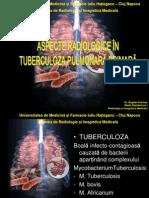 prezentare tbc