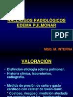 Edema Pulmonar Rx