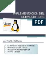 Implementacion Del Servidor - DNS
