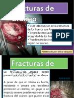 65261691 Fracturas de Craneo
