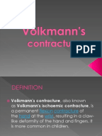 Access 2003 report to pdf vba access