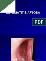 93960412-ESTOMATITIS-AFTOSA-RECURRENTE