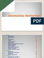 Anomalias dentarias2