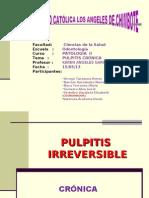 Exposicion Pulpitis Cronica
