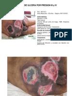 Curacion de Ulcera Por Presion III y IV-cesar