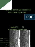 8.5 Anatomía por imagen seccional de columna por RM