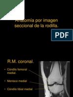 8.6 Anatomía por imagen seccional de la rodilla