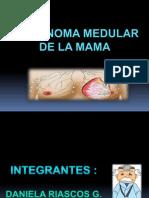 Carcinoma Mama (1)