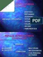 Fistulas