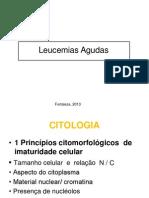 Leucemia aguda 2013.1