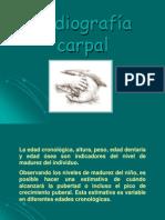 Radiografía carpal