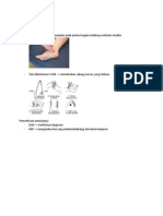 Tarsal Tunnel Syndrome PXan