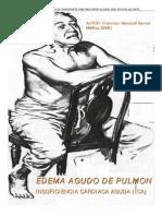 Edema Agudo Pulmon