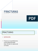 fracturas-090829120602-phpapp01