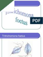 Tritrichomona Foetus Trichomona Vaginalis